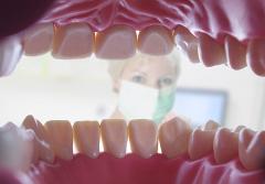 GKV-Zuschuss für Professionale Zahnreinigung